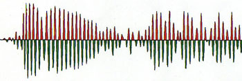 Wave form rises to a crescendo and demonstrates symmetrical pattern in its amplitude